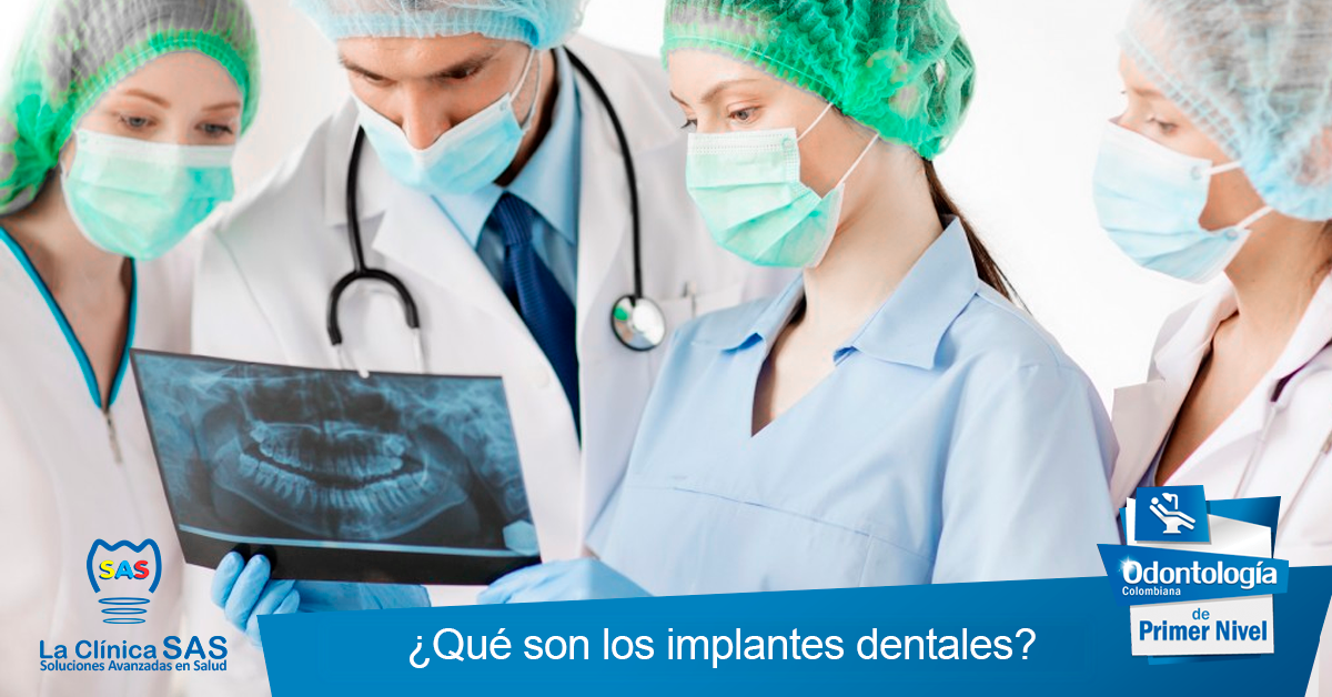 que son los implantes dentales